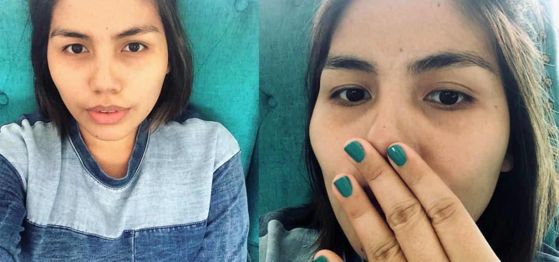 Skin Perfection Cebu